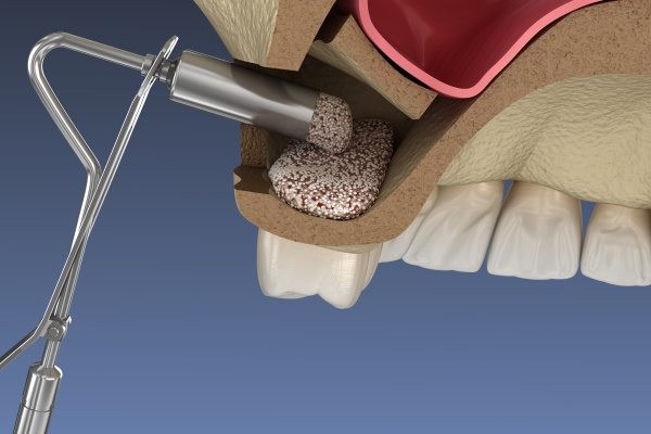 Sinus Lift Surgery - Adding new bone. 3D illustration